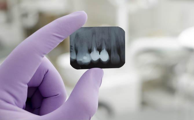 צילום רנטגן של שיניים