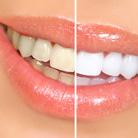 רואים את הלבן בשיניים: המדריך המלא להלבנת שיניים
