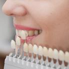 שתל ארוך טווח: המדריך להשתלות שיניים