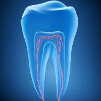 חבלות שיניים - לא נעים, ניתן לטפל