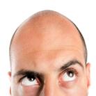 סיבות להתקרחות ושיטות השתלת שיער - להישאר שעיר לנצח
