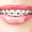 שיקום הפה - מטיפולי השתלות שיניים ועד יישור שיניים למבוגרים