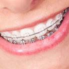 דרך הישר:  המדריך ליישור שיניים - אורתודונטיה