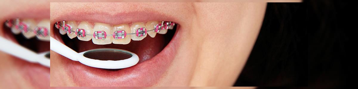 """ד""""ר פרידמן מנחם מומחה ביישור שיניים - תמונה ראשית"""