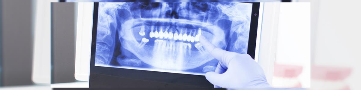 """דנט אור הדמיית שיניים בע""""מ - תמונה ראשית"""