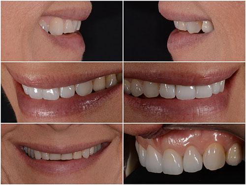 טיפולי שיניים בטכנולוגיה מתקדמת