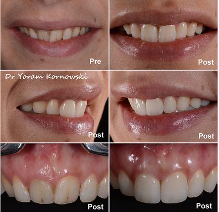 שירותי טכנאות שיניים