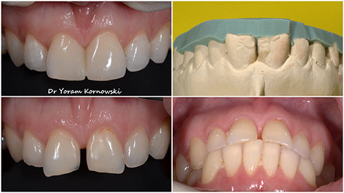 רופא שיניים מומחה פה ולסת