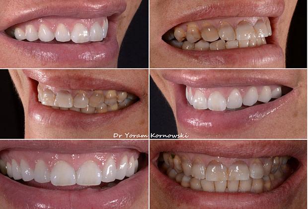 טיפולי שיניים שגרתיים