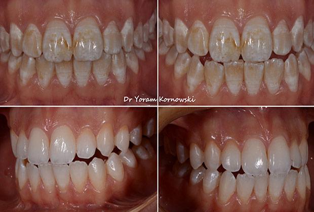 רפואת שיניים משלימה