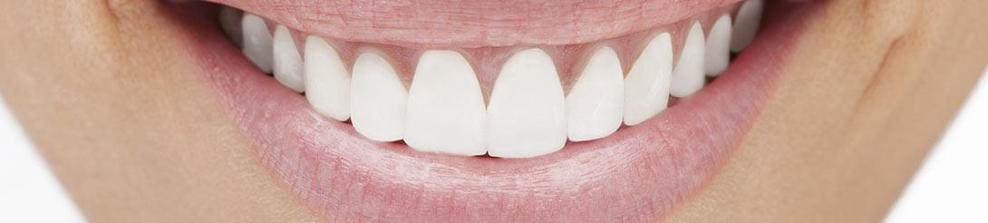 מחירון הלבנת שיניים