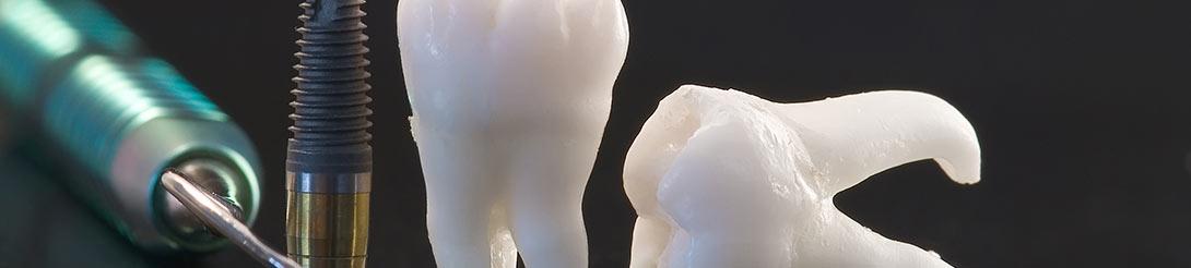מחירון מומחים לשיקום הפה