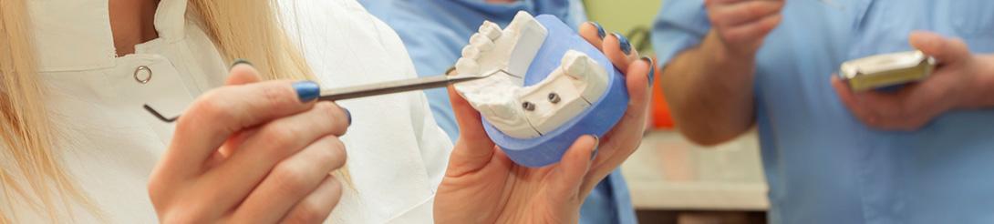 מחירון השתלת שיניים