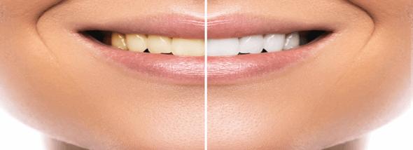 רואים את הלבן בשיניים: המדריך המלא להלבנת שיניים - תמונת המחשה