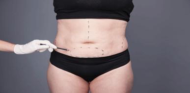 מתיחת בטן: הכול על העלמת עודפי עור באמצעות ניתוח - תמונת המחשה