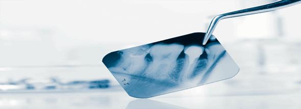 חבלות שיניים - לא נעים, ניתן לטפל - תמונת המחשה