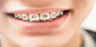 גשר בשיניים - כל מה שרצית לדעת - תמונת המחשה