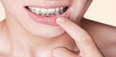 יישור שיניים ואסתטיקה של הפה - תמונת המחשה