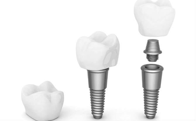 בסיס לשחזור שיניים