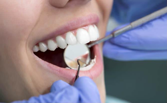 החלמה מהשתלת שיניים תלויה בלסת